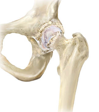 Arthritis of the hip
