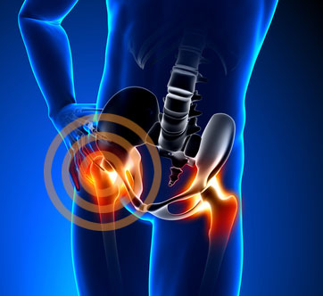 Metal Sensitivity and Allergy to Hip Implant